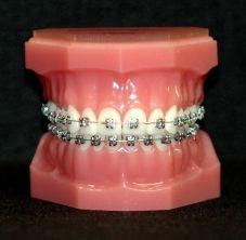 Types of braces brackets